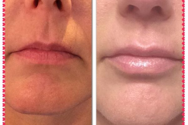 Lip Fillers & Injections | Vibe Salon & MediSpa