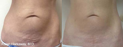 Skin Tightening before & after
