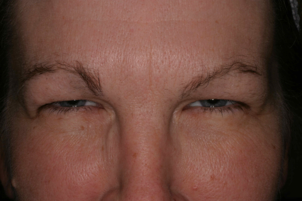 After Botox on frown lines