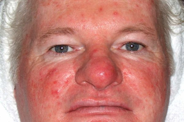 Before Intense Pulsed Light (IPL) Skin Rejuvenation