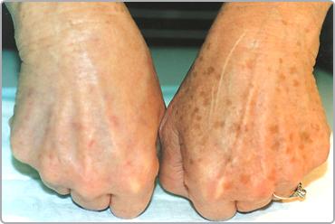 Intense Pulsed Light (IPL) Skin Rejuvenation Pigmentation Removal
