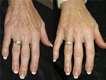 Radiesse hand rejuvenation before & after