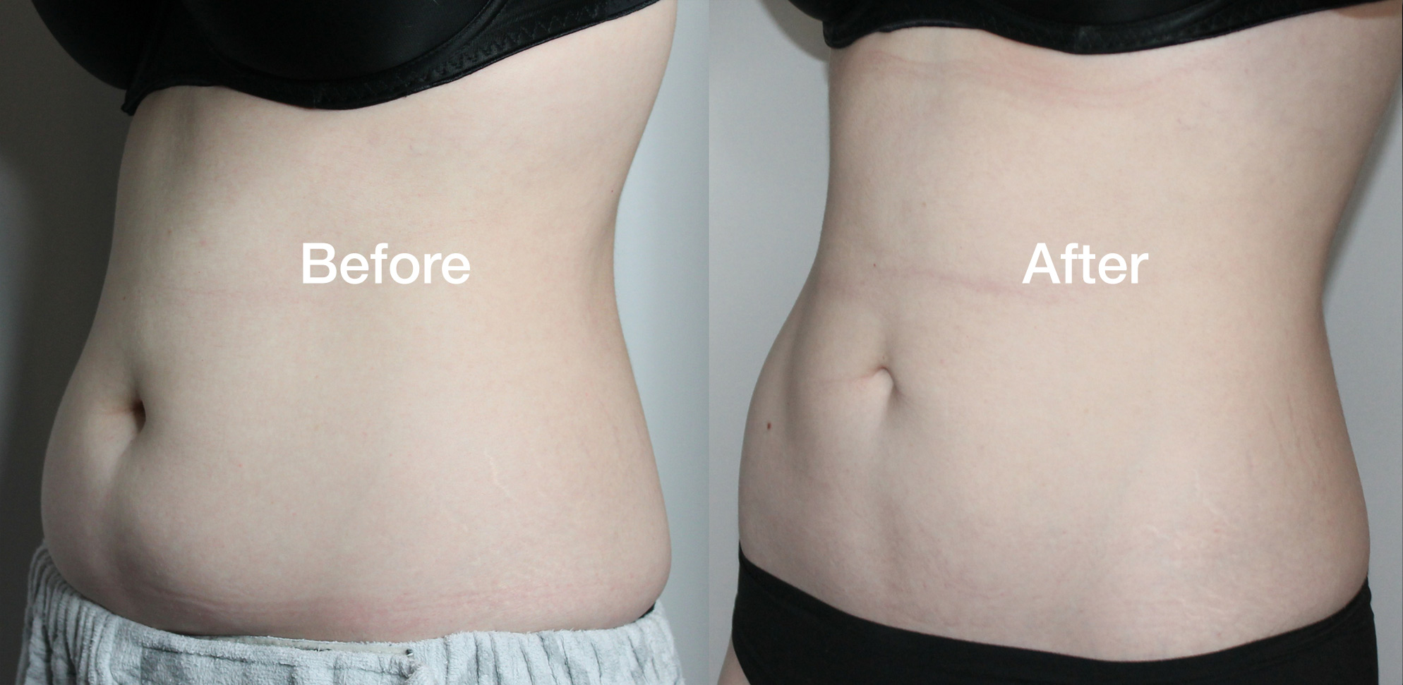Coolsculpting Before & Afters - reduce fat at Vibe Medi Spa in Bedford NS
