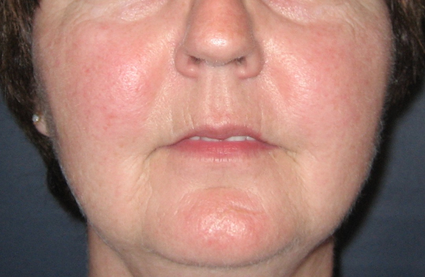 After Intense Pulsed Light (IPL) Skin Rejuvenation