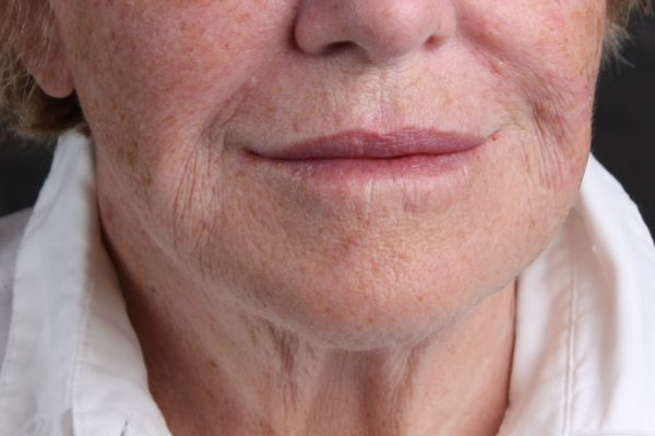 After Thermage Botox Filler