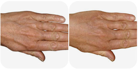 Before & after hand fillers