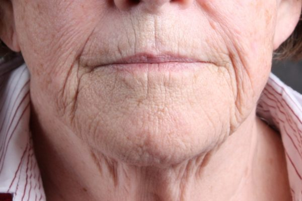 Before Thermage Botox Filler