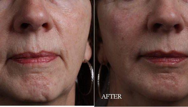 Before & After Dermal Fillers