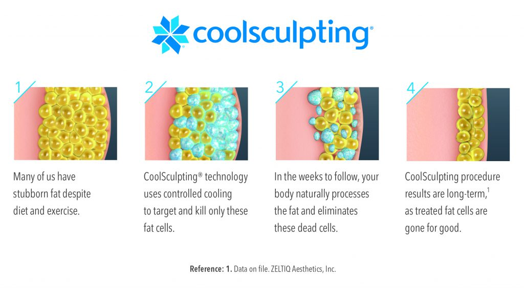 How Coolsculpting Works - Vibe MediSpa in Bedford NS