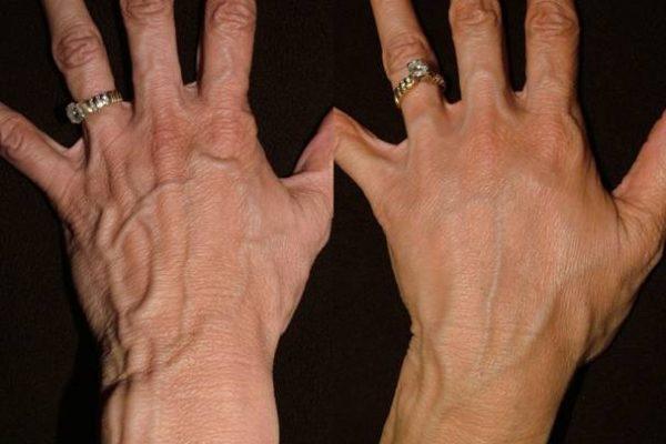 Radiesse hand rejuvenation before & after