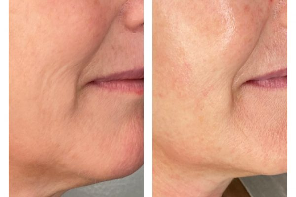 Lifted and contoured neck. Radiant, plump skin that is smoother.